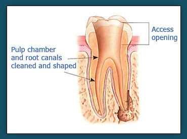 Root Canals (Step 2)