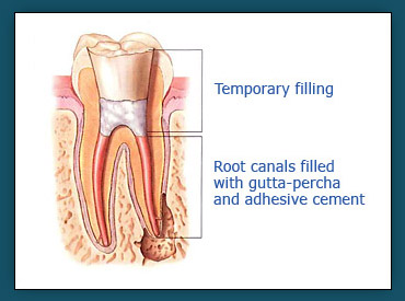 Root Canals (Step 3)