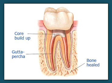 Root Canals (Step 4a)