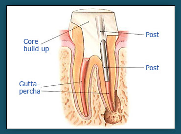 Root Canals (Step 4b)